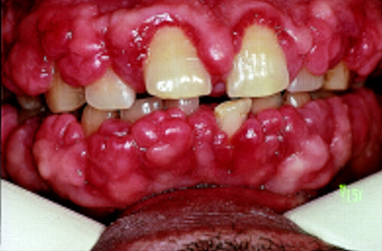 Family dental health: What are the causes for bleeding gums ?