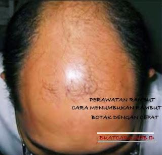 Rahasia Menumbuhkan Rambut Rontok Dalam 3 Hari(CEPAT)