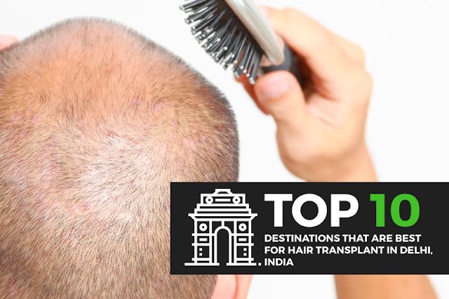 Go through the list of Top 10 Destinations that are best for Hair Transplant in Delhi, India