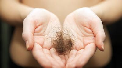 Penyakit Penyebab Rambut Rontok