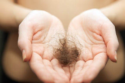 Daftar Penyakit Yang Mengakibatkan Rambut Rontok