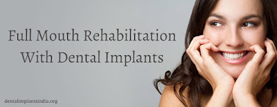 Full Mouth Rehabilitation in India