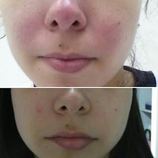 Detalhe de cliente com episódio de Rosácea tratada com LEDs, antes e após no mesmo dia.