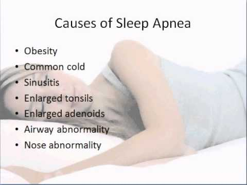 What Causes Sleep Apnea? Signs of Sleep Apnea