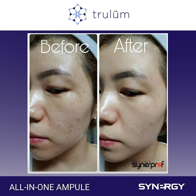 Jual Serum Penghilang Keriput Trulum Skincare Tunjung Teja Serang