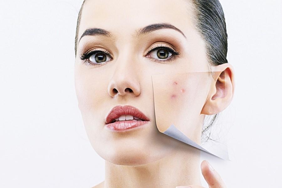 A acne pode piorar no Inverno? ⛄