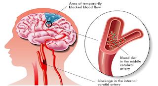 definisi penyakit stroke