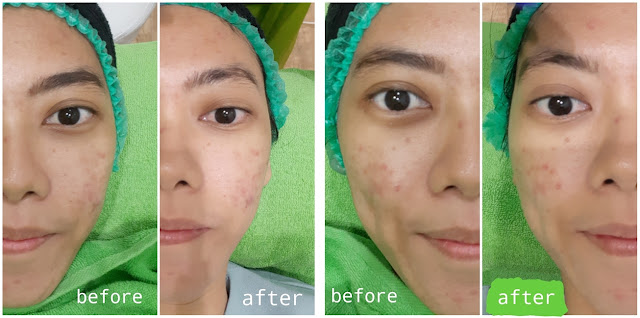Before - After ZAP Photo Facial Acne