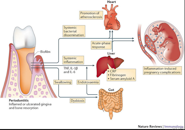 atherosclerosis research essay Atherosclerosis atherosclerosis is the thickening of the inner most layer of the arteries (or the intima), which lead to heart attack, stroke.