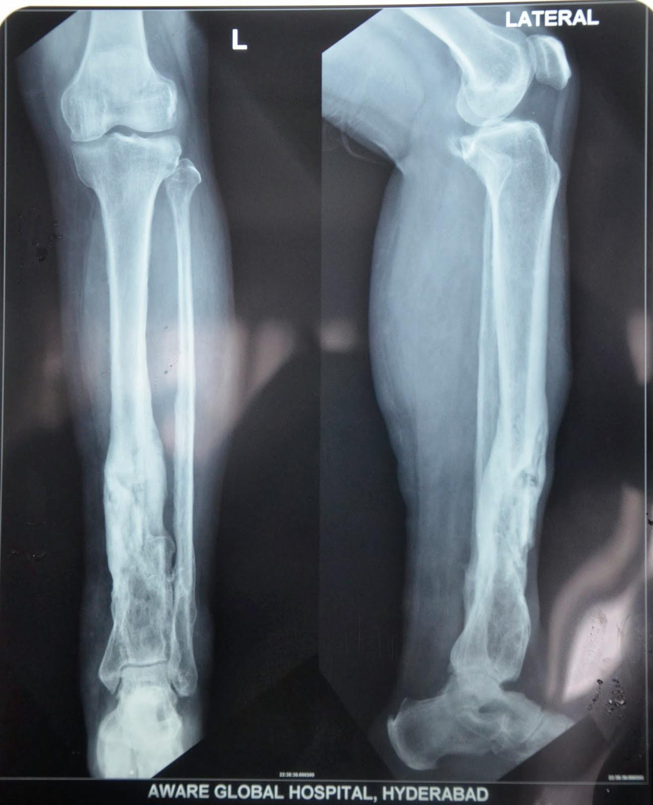 Treatment Algorithms for Chronic Osteomyelitis