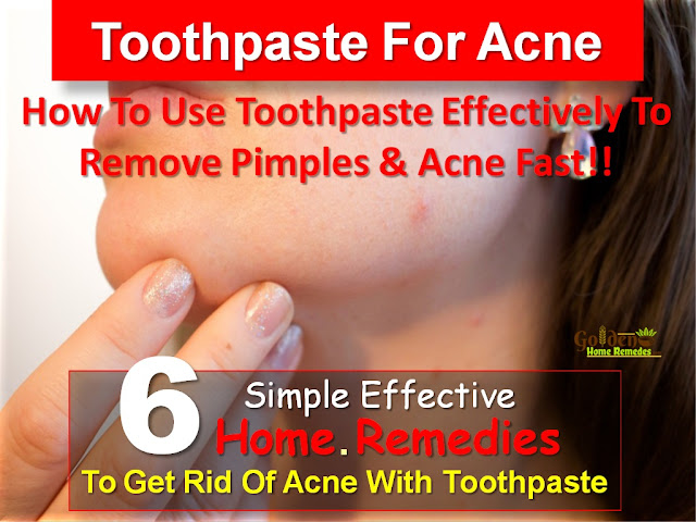 Toothpaste For Acne, Toothpaste Acne, Toothpaste For Pimples, Toothpaste And Acne, Is Toothpaste Good For Acne, How To Get Rid Of Acne With Toothpaste, Toothpaste For Acne Treatment, How To Use Toothpaste For Acne, Toothpaste For Acne Treatment, Acne Treatment With Toothpaste,