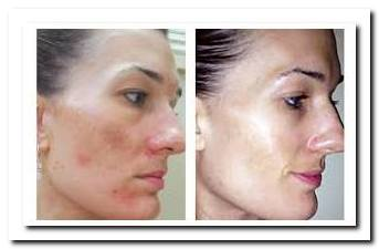 Osmosis Skin Care Reviews Savingkushiesdiapers Blogspot Com