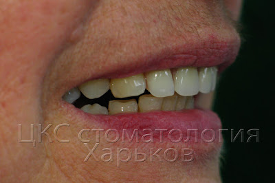 Вид улыбки после протезирования
