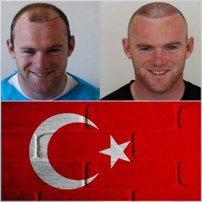 زراعة الشعر في تركيا, Hair transplantation in Turkey