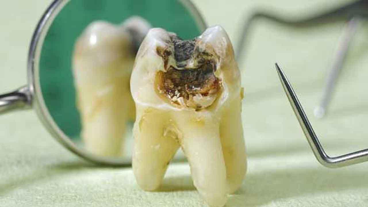 cara-menjaga-kesehatan-gigi-secara-alami