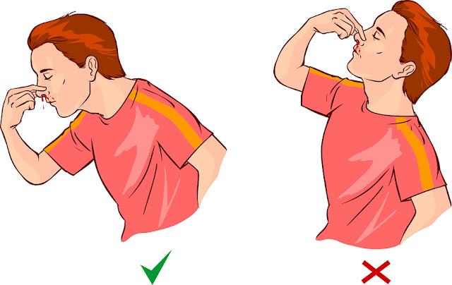 طريقة علاج نزيف الأنف