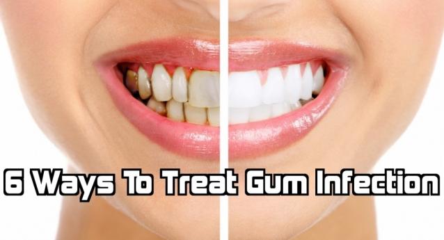 6 cách để xử nhiễm nướu răng
