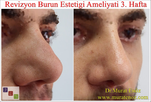 Revision Nose Job in Istanbul – Revision Rhinoplasty in Istanbul – Before and After Photos Rhinoplasty Photos Revision Rhinoplasty
