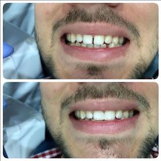 teeth trainer testimoni 3