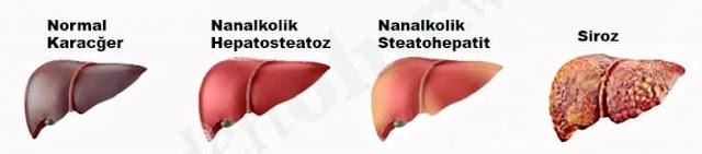 Hepatosteatoz nedir- grade 1-2-3