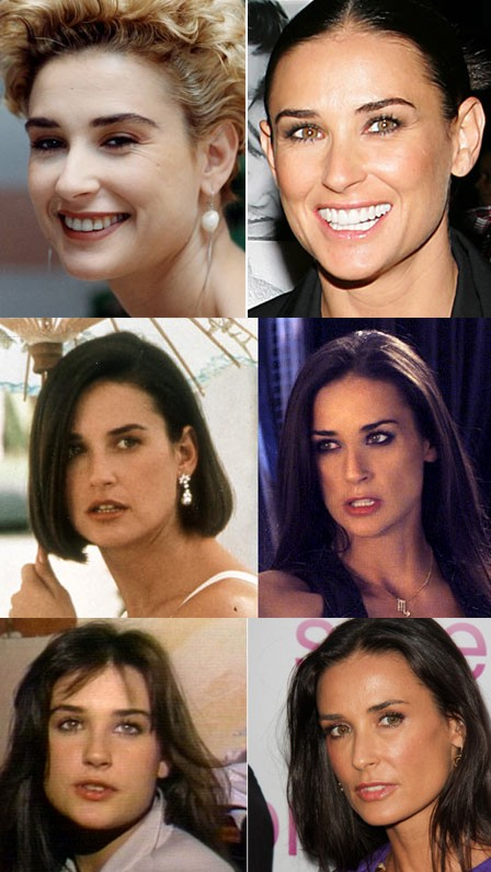 Demi Moore plastic surgery before and after? (image hosted by http://nose-job-nose-reshaping-surgery.blogspot.com.es)