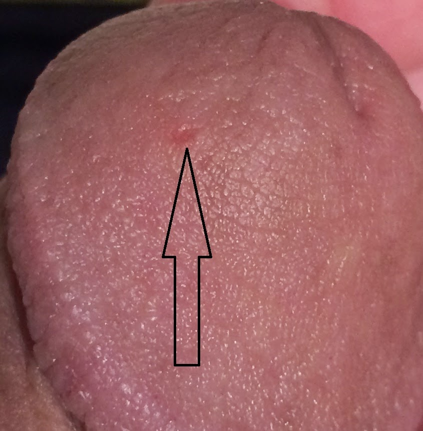 I have genital herpes and I'm not sure what type that is called 3
