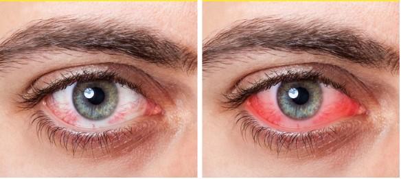 8 Tips untuk Membantu Menyembuhkan Mata Kering Ala Rumahan