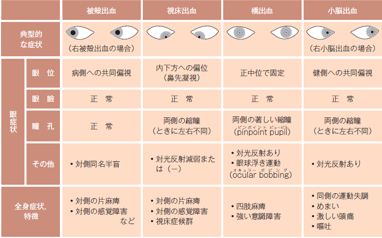 眼球運動障害 瞳孔不同 対光反射...