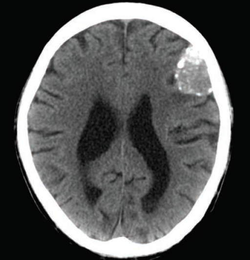 Learn CT Scan | 512 x 533 png 247kB