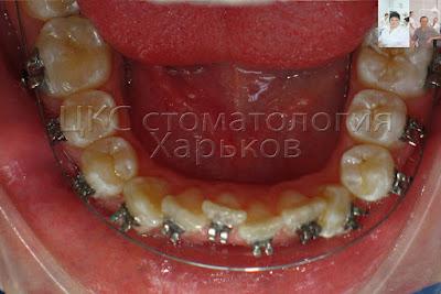 Проволочная дуга - перемещает зубы