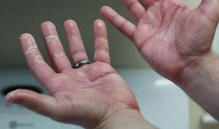 Apa Penyebab Tangan Mendadak Terasa Panas Dan Gatal
