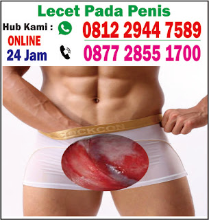 obat alami luka lecet pada kemaluan pria