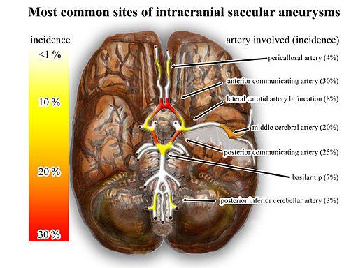 Asuhan Keperawatan Aneurisma Otak