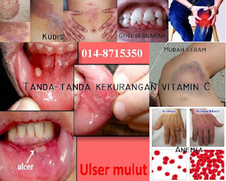 Kekurangan vitamin C; gejala kekurangan vitamin; Vitamin C yang terbaik; Vitamin C yang berkesan; Vitamin C paling murah