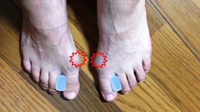 足の指の間に物を挟めると足の指を痛めるだけ!