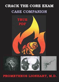 Crack the CORE Exam Case Companion by Prometheus Lionhart M.D