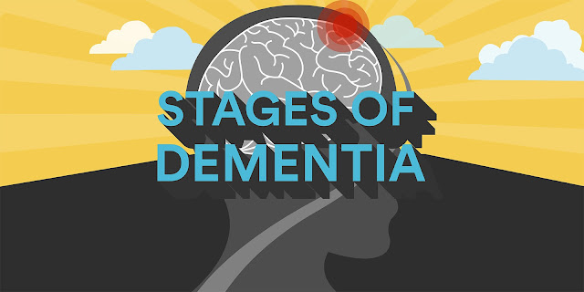 Take notes! These 6 Symptoms Someone Experiencing Dementia