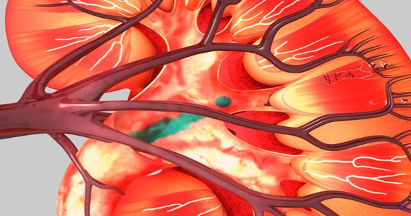 অণ্ডলালমূত্র (Albuminuria) - কারণ, লক্ষণ এবং হোমিও চিকিত্সা