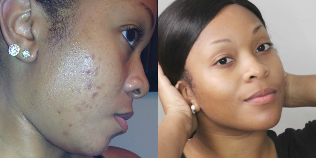 How to clear Acne and Black Spots and where to buy effective products