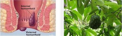 Menghilangkan Wasir Secara Herbal