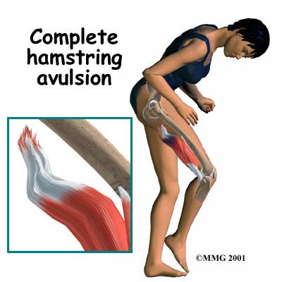 Live Complete Hamstring Avulsion - El Paso Chiropractor