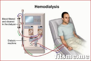 What is Hemodialysis, Hemodialysis