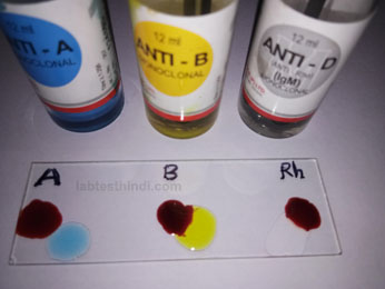 blood group determination method