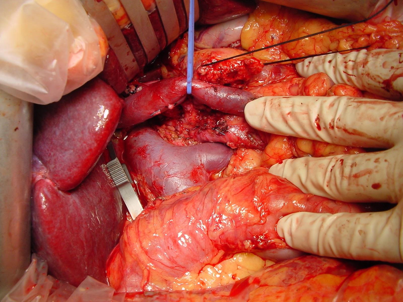 Extirpación total del mesopáncreas | Tribulaciones de un cirujano