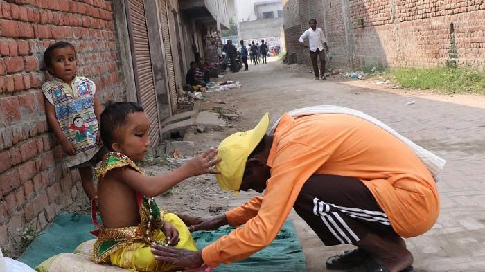 Prashu,  Bocah Yang Lahir Dengan Bentuk Fisik Aneh, Dianggap Reinkarnasi Dewa Ganesha Di India