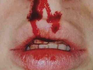 к чему снится кровь, сонник кровь