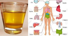 10 Good Reasons Why You Should Start Drinking Morning Warm Turmeric Water