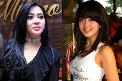 artis yang operasi plastik wajah artis korea operasi plastik wajah artis indonesia yg oplas wajah artis oplas yang gagal artis operasi plastik yang gagal jambul katulistiwa