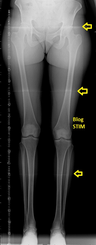 Sobre técnicas de imágenes médicas (Blog STIM): Escanograma y ...