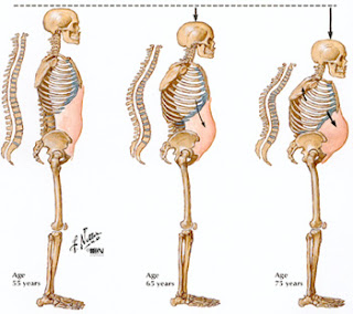 Struktur tulang itai-itai disease